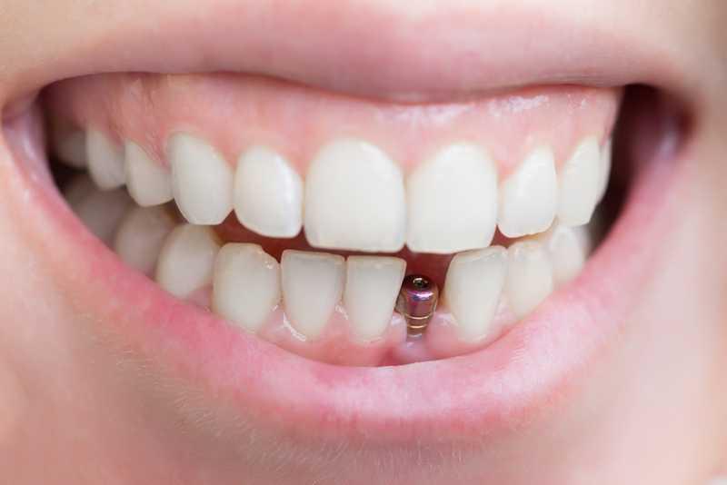 Impianti Dentali Informazioni essenziali